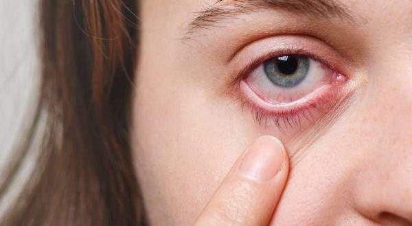 Đau mắt đỏ kiêng ăn gì?